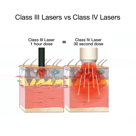 Diagram of laser penetrations class 3 and 4