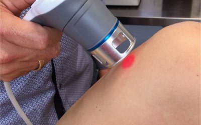 High Intensity Laser Therapy for Knee Osteoarthritis