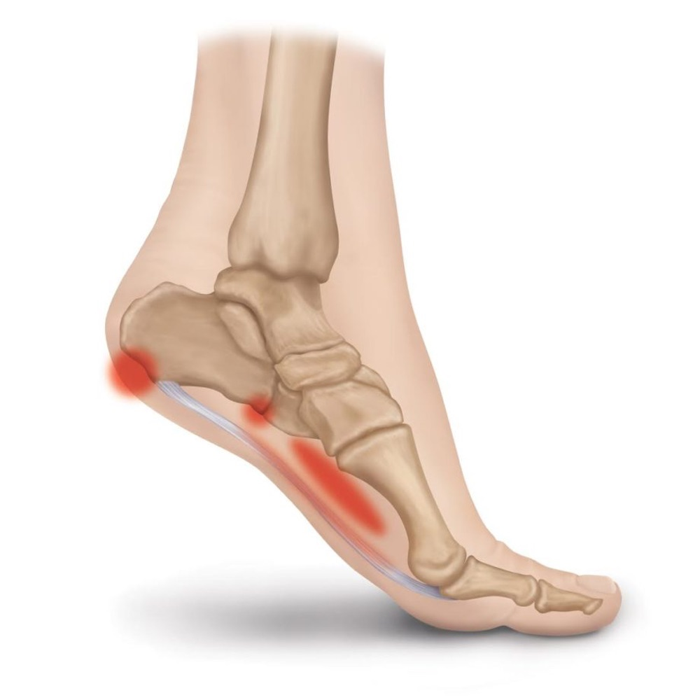 Plantar Fasciitis Pain Spot Illustrated